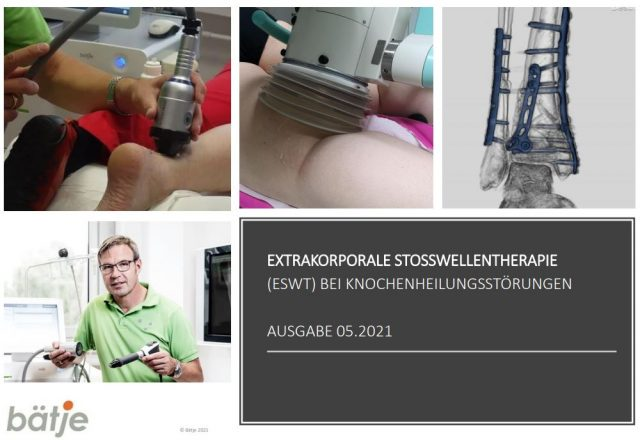 Extrakorporale Stosswellentherapie bei Knochenheilungstörungen